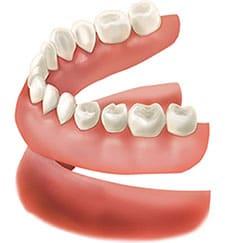 dentures image