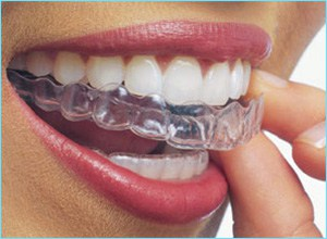 invisalign braces in the mouth